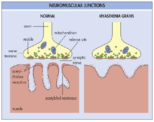 Causes of Myasthenia-Gravis (MG)